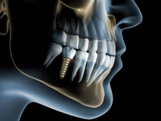 implantatplanung-3